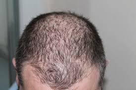 زراعه الشعر