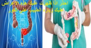 اعراض اعصاب المعدة والقولون