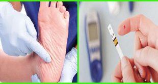 القدم السكري