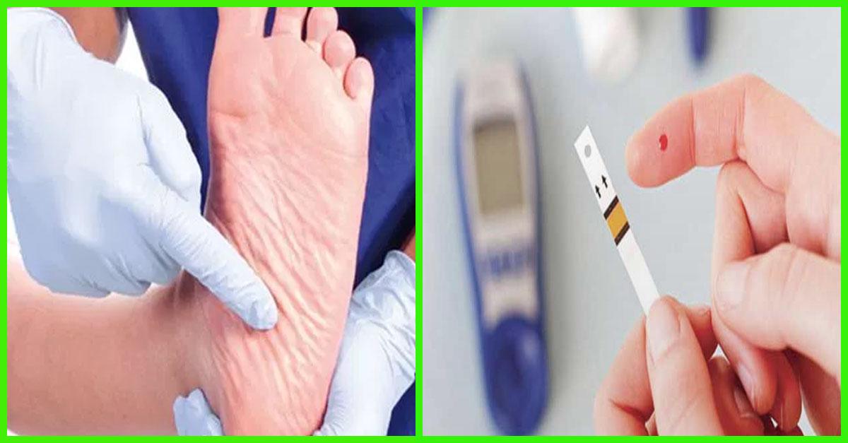 علاج القدم السكرى