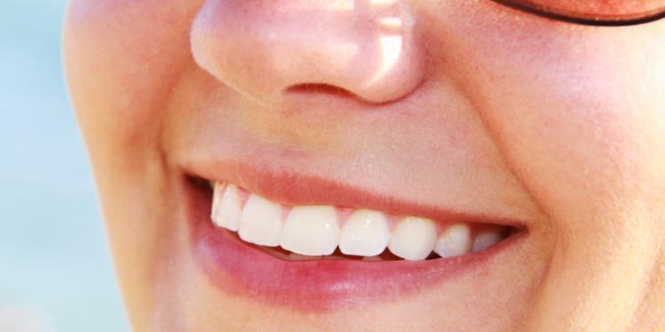 زراعة اسنان الجزائر فارسي