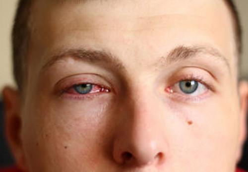 اسباب تورم العين