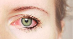 افضل علاج لجفاف العين الشديد