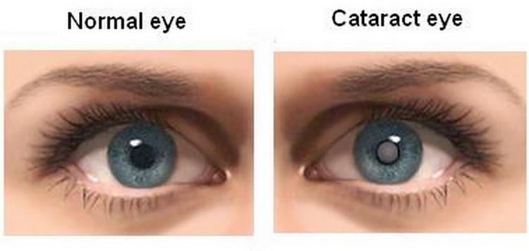 المياه البيضاء في العين وعلاجها
