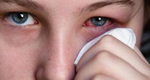 علاج حساسية العين بالاعشاب