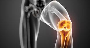 علاج خشونة الركبة بالاعشاب الطبيعية