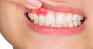 علاج خراج الاسنان بالمضاد الحيوي