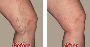 علاج دوالي الساقين بالليمون