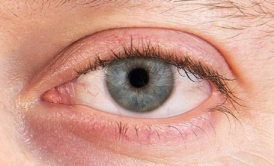 علاج جفاف العين جابر القحطاني
