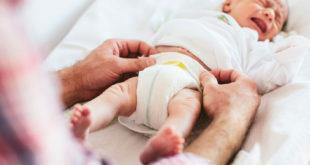 علاج تسلخات الاطفال الناتج عن الحفاظات