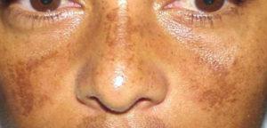 علاج سواد الوجه بالقران