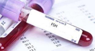 علاج ارتفاع هرمون fsh عند النساء بالاعشاب