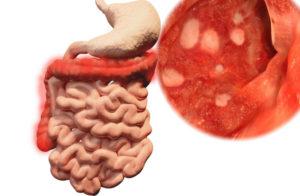 علاج التهاب القولون التقرحي بالاعشاب
