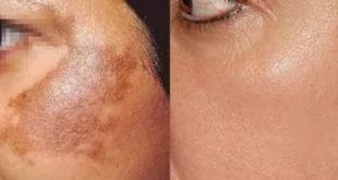 علاج التصبغات الجلدية العميقة