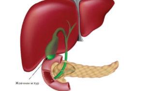 علاج التهاب المرارة بالاعشاب جابر القحطاني