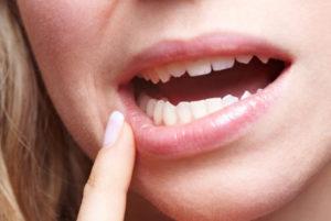 علاج تقرحات الفم جابر القحطاني