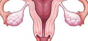 علاج بطانة الرحم المهاجرة بالقران