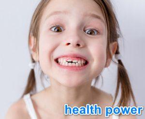 سقوط الاسنان اللبنيه في عمر خمس سنوات